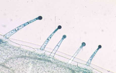 Trichomes Tobacco on Mitochondria Structure